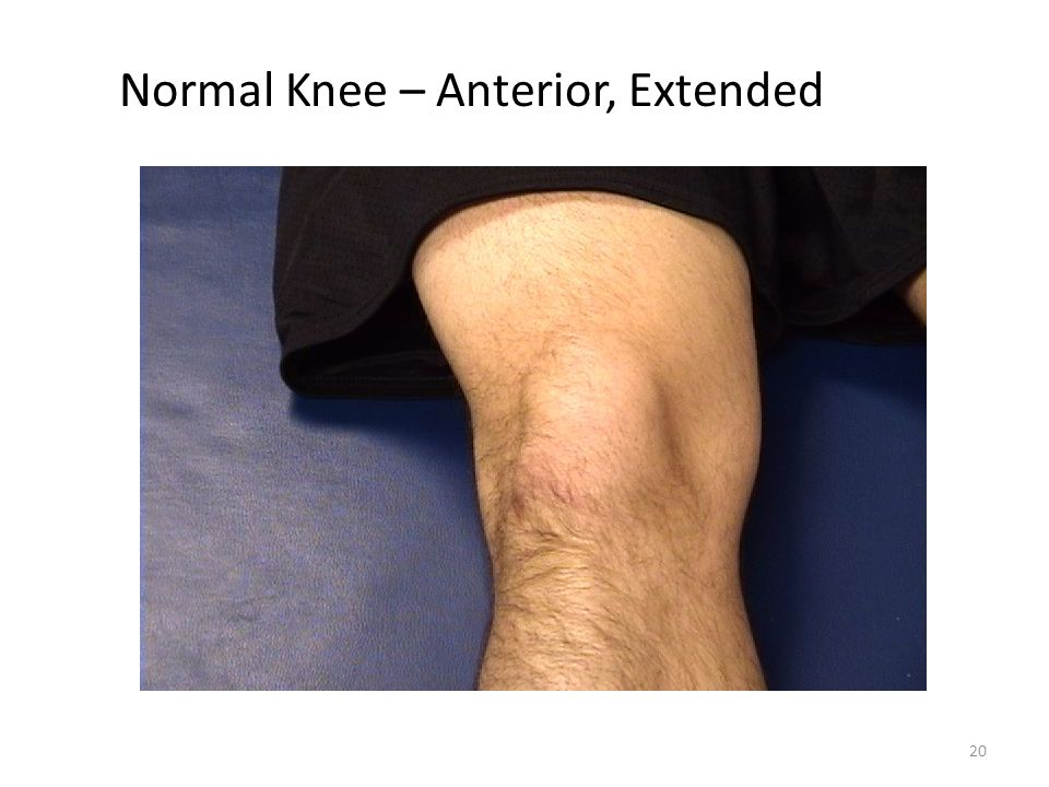 20 Normal Knee – Anterior, Extended