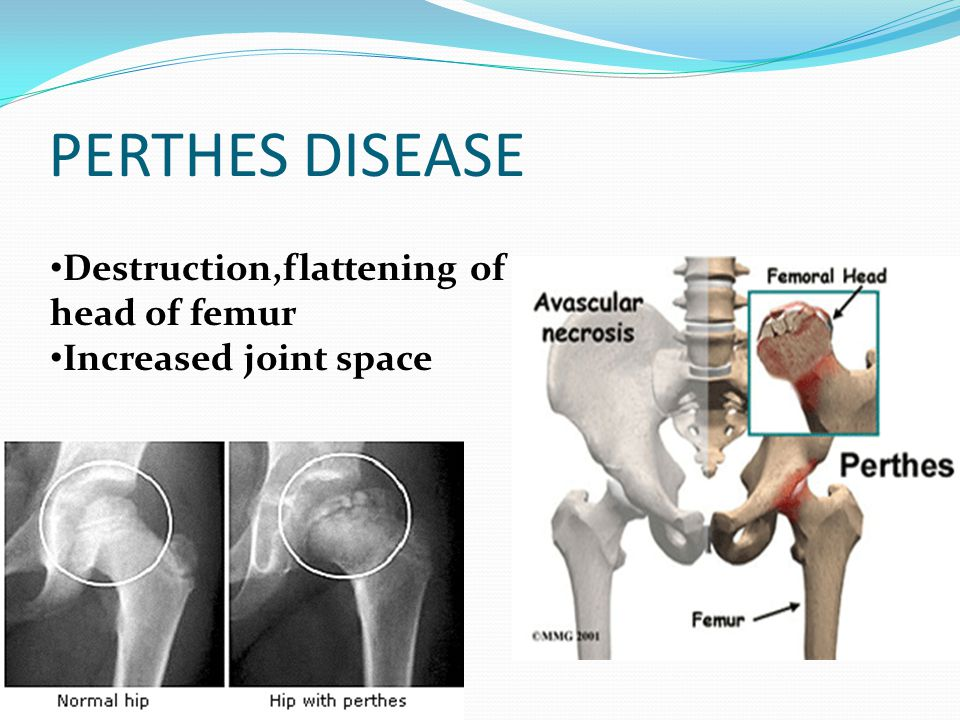 PERTHES DISEASE Destruction,flattening of head of femur Increased joint space