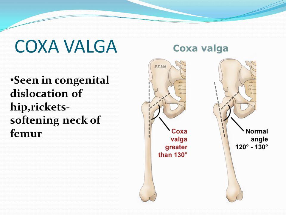 COXA VALGA Seen in congenital dislocation of hip,rickets- softening neck of femur