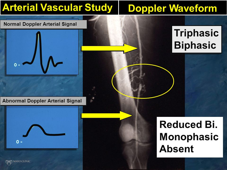 Triphasic Biphasic Triphasic Biphasic Normal Doppler Arterial Signal Abnormal Doppler Arterial Signal Doppler Waveform Reduced Bi. Monophasic Absent A