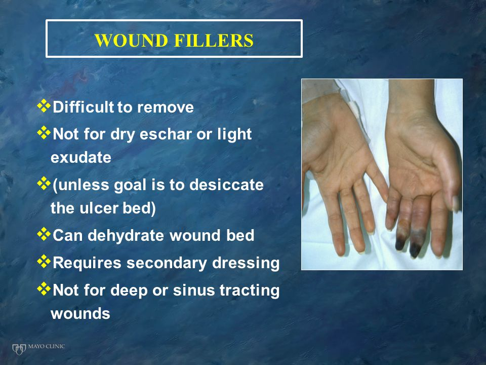 WOUND FILLERS   Difficult to remove   Not for dry eschar or light exudate   (unless goal is to desiccate the ulcer bed)   Can dehydrate wound