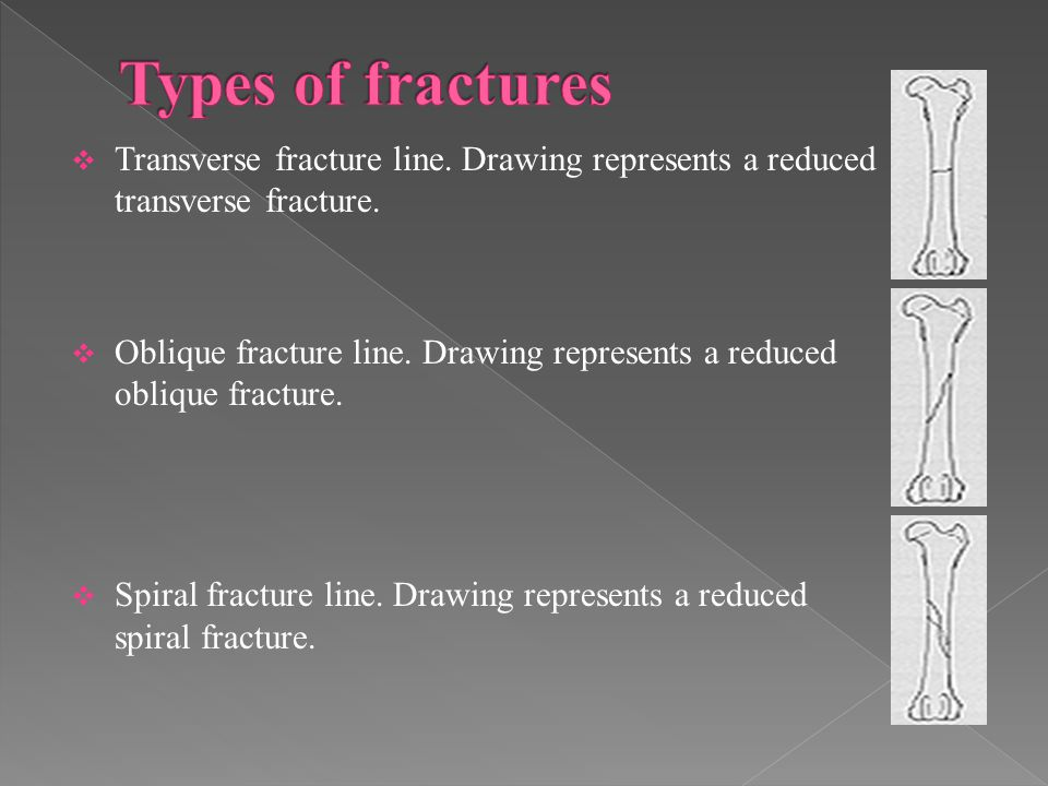  Transverse fracture line.Drawing represents a reduced transverse fracture.