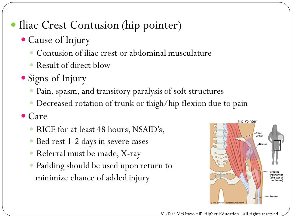Iliac Crest Contusion (hip pointer) Cause of Injury Contusion of iliac crest or abdominal musculature Result of direct blow Signs of Injury Pain, spasm, and transitory paralysis of soft structures Decreased rotation of trunk or thigh/hip flexion due to pain Care RICE for at least 48 hours, NSAID's, Bed rest 1-2 days in severe cases Referral must be made, X-ray Padding should be used upon return to minimize chance of added injury