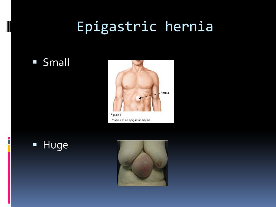  The treatment of epigastric hernias is the same as others – open or laparoscopic repair.