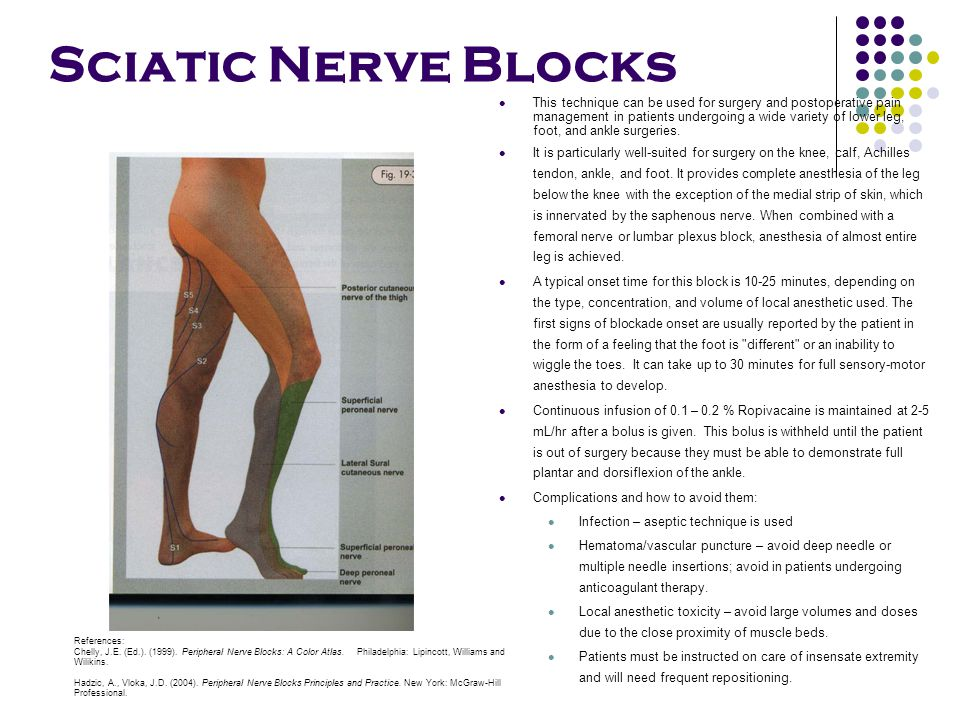 Sciatic Nerve Blocks This technique can be used for surgery and postoperative pain management in patients undergoing a wide variety of lower leg, foot, and ankle surgeries.