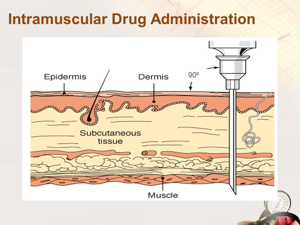 Intramuscular Drug Administration 90º