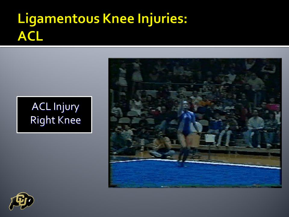 ACL Injury Right Knee