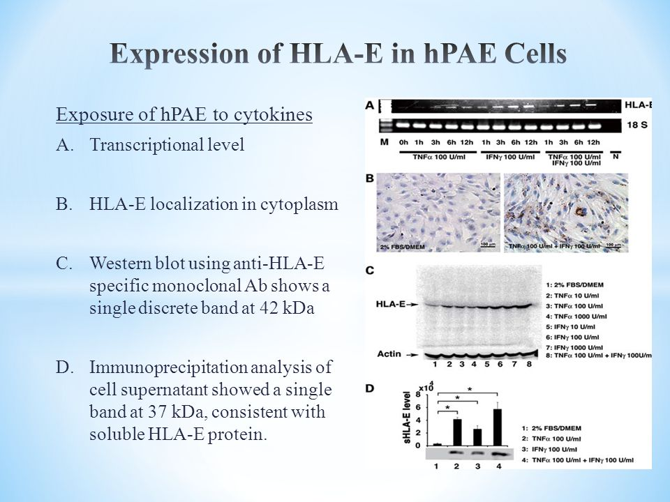 Exposure of hPAE to cytokines A.Transcriptional level B.HLA-E localization in cytoplasm C.Western blot using anti-HLA-E specific monoclonal Ab shows a single discrete band at 42 kDa D.Immunoprecipitation analysis of cell supernatant showed a single band at 37 kDa, consistent with soluble HLA-E protein.