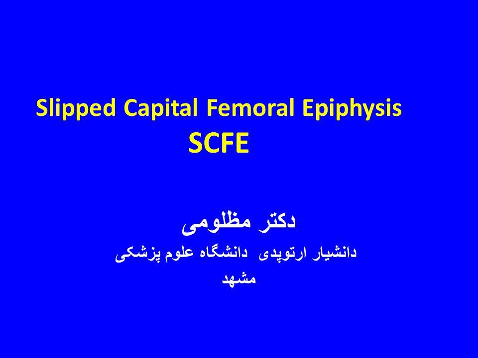 Slip Capital Femoral Epiphyses