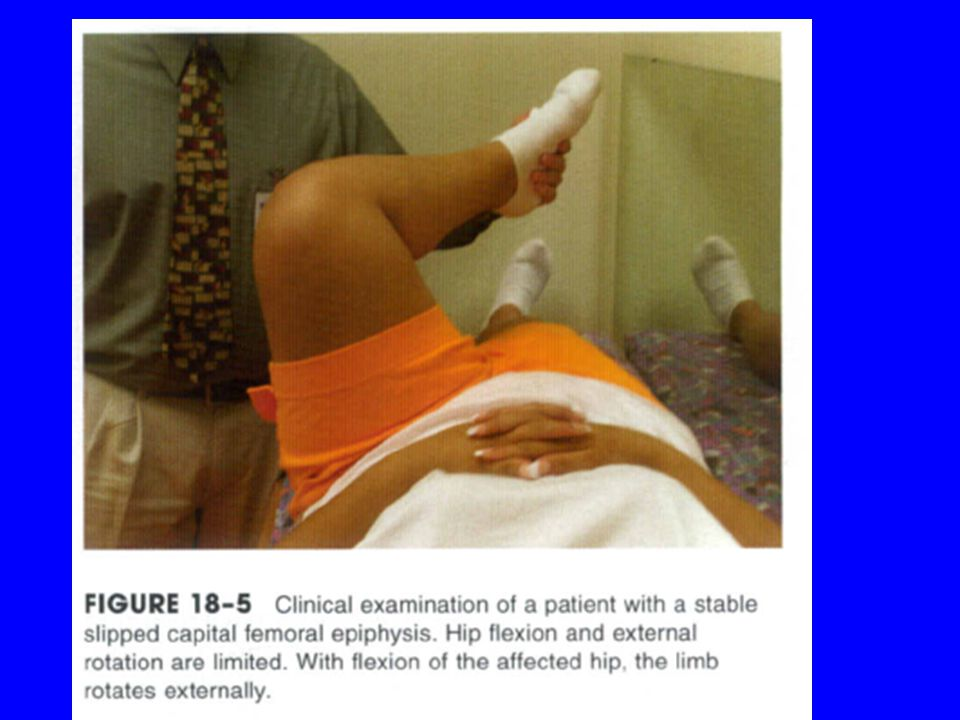 Clinical features Unstable Acute or Acute-on-Chronic Slipped Capital Femoral Epiphysis severe, fracture-like pain in the affected hip region, usually as the result of a relatively minor fall or twisting injury.