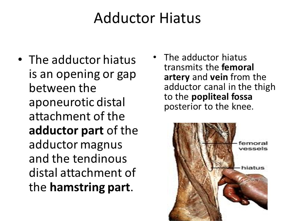 Adductor Hiatus The adductor hiatus is an opening or gap between the aponeurotic distal attachment of the adductor part of the adductor magnus and the tendinous distal attachment of the hamstring part.