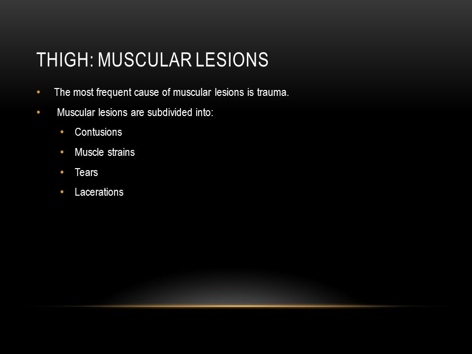 THIGH: MUSCULAR LESIONS The most frequent cause of muscular lesions is trauma. Muscular lesions are subdivided into: Contusions Muscle strains Tears L