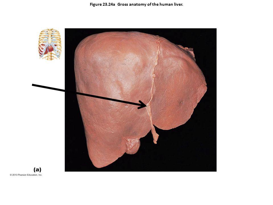 Figure 23.24a Gross anatomy of the human liver.