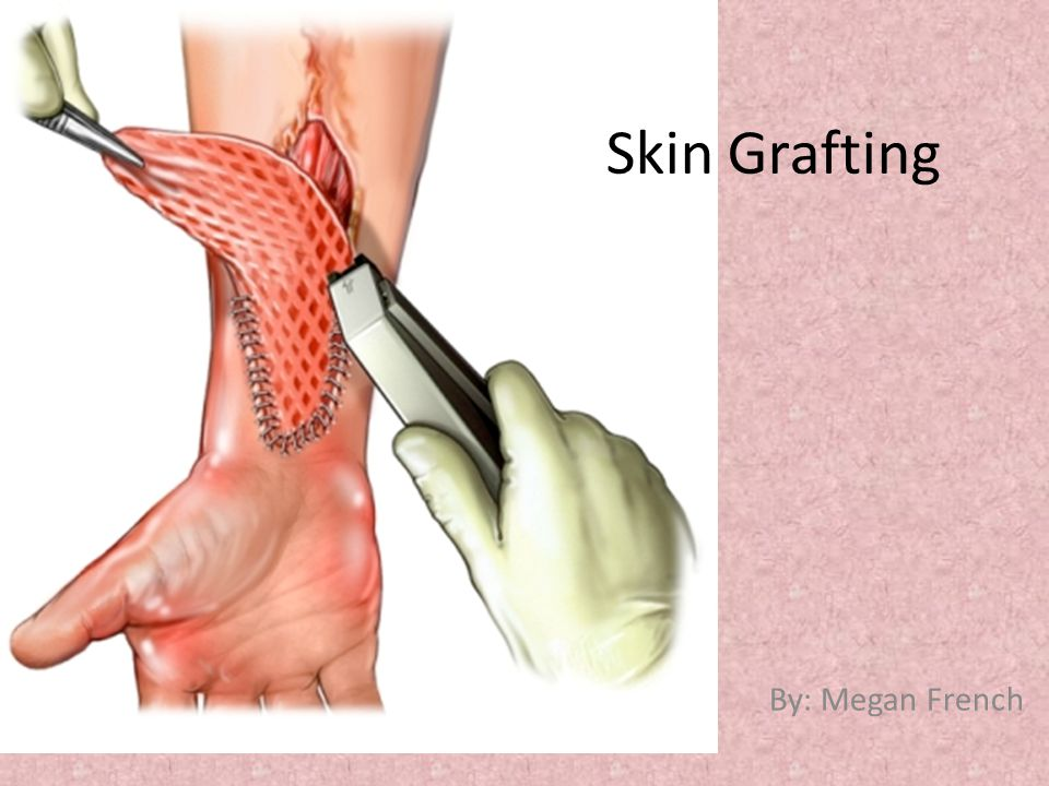 Skin Grafting By: Megan French