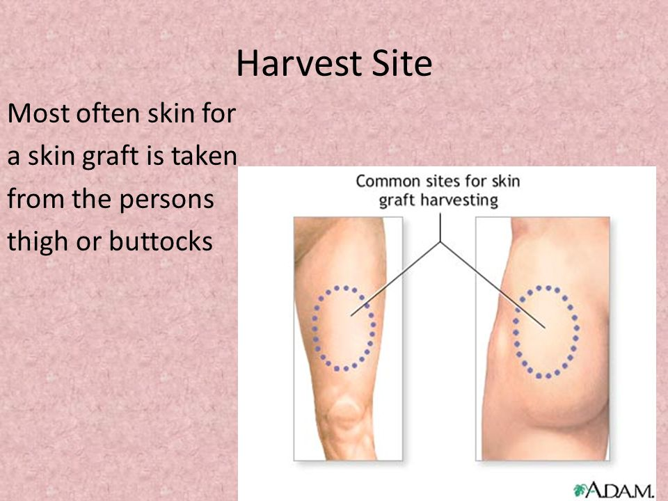 Harvest Site Most often skin for a skin graft is taken from the persons thigh or buttocks