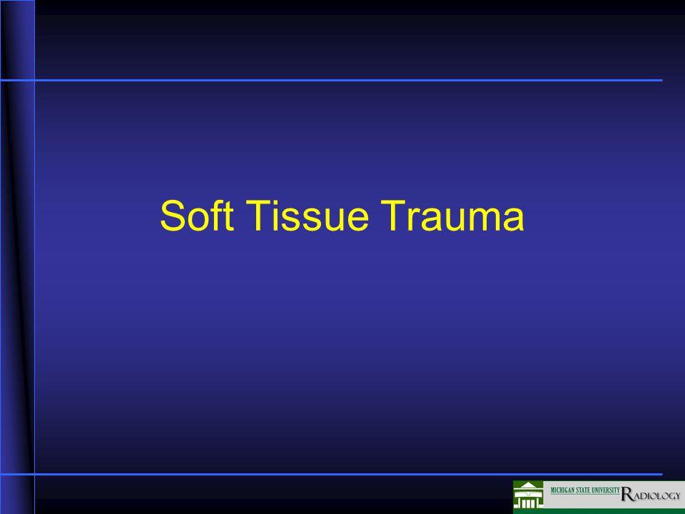 Soft Tissue Trauma