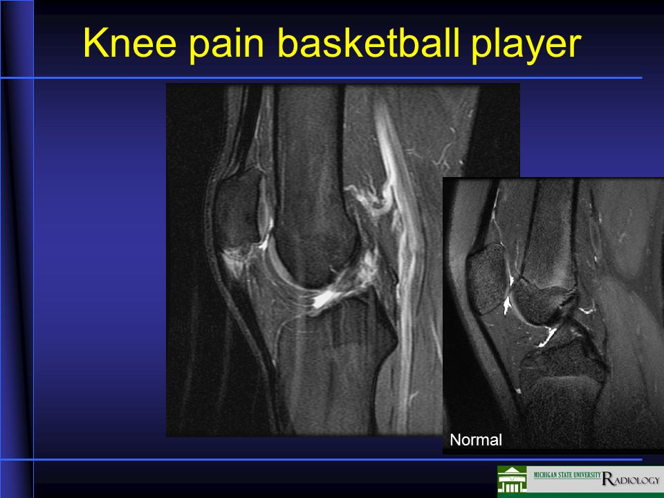 Knee pain basketball player Normal