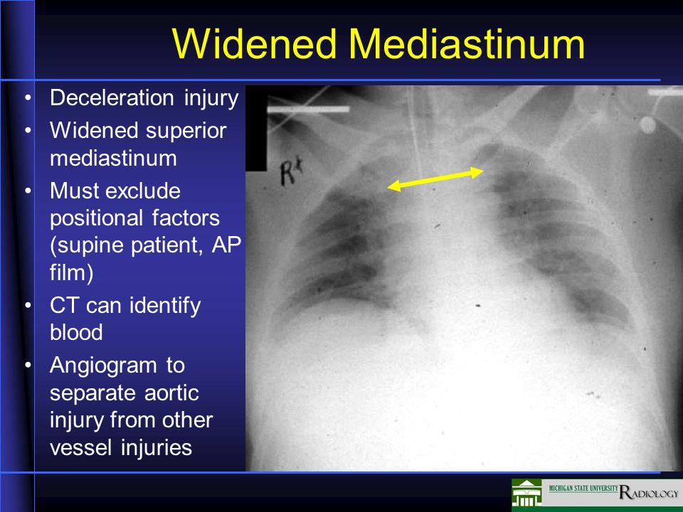 Widened Mediastinum Deceleration injury Widened superior mediastinum Must exclude positional factors (supine patient, AP film) CT can identify blood Angiogram to separate aortic injury from other vessel injuries
