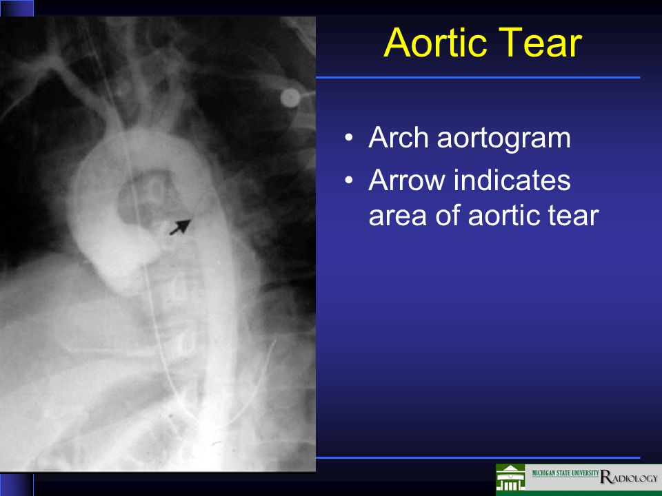 Aortic Tear Arch aortogram Arrow indicates area of aortic tear