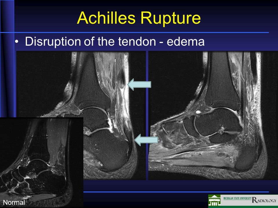 Achilles Rupture T2 image Focal high signal in tendon (white) Irregular appearance to tendon Tendon normally low signal (black)