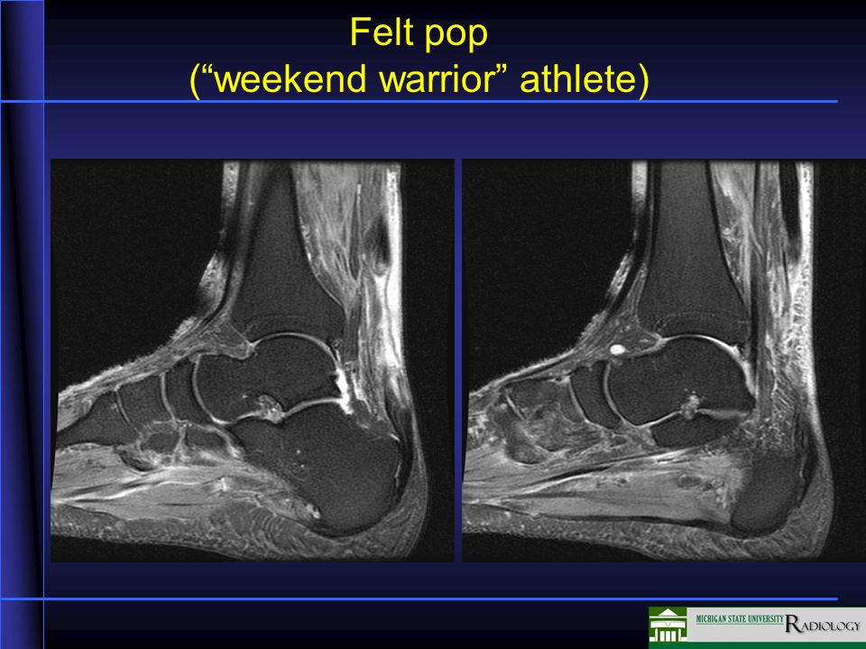 Jumper's knee (patellar tendinosis/partial tearing) High signal from edema in the tendon and adjacent tissues Normal