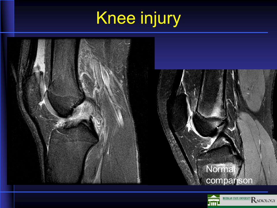 ACL Tear Normal comparison ACL