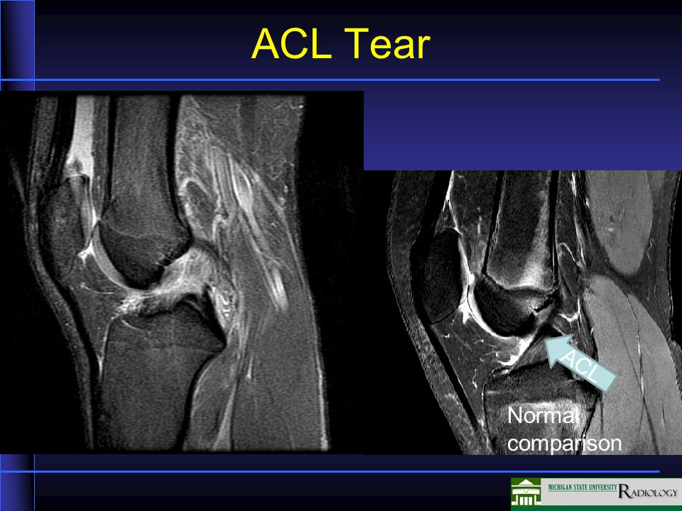 ACL Tear #2 Normal comparison ACL