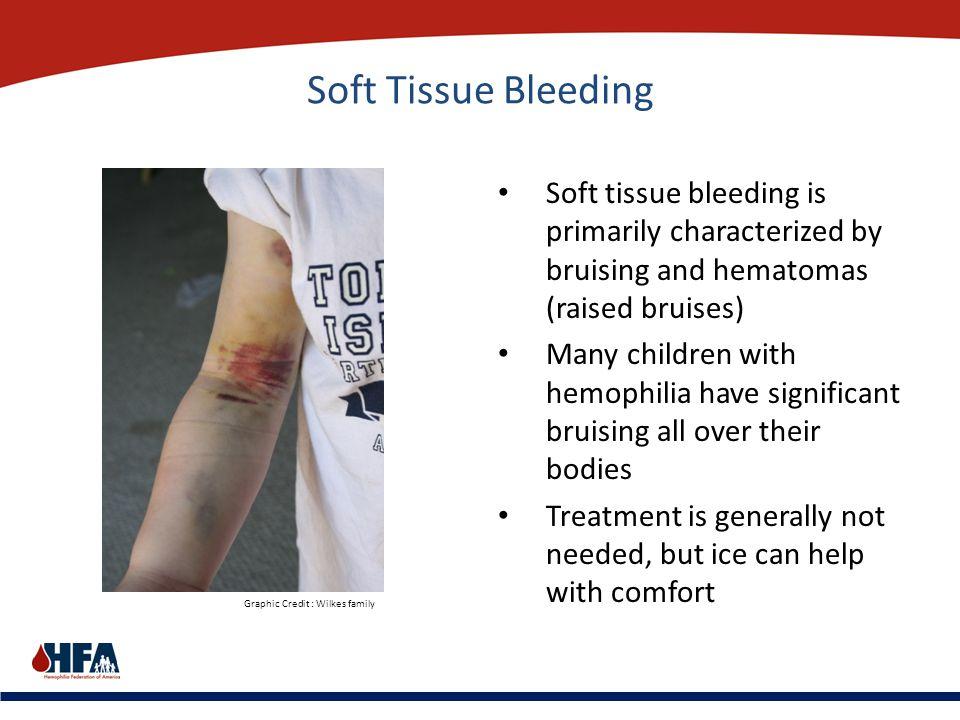 Soft Tissue Bleeding Soft tissue bleeding is primarily characterized by bruising and hematomas (raised bruises) Many children with hemophilia have sig