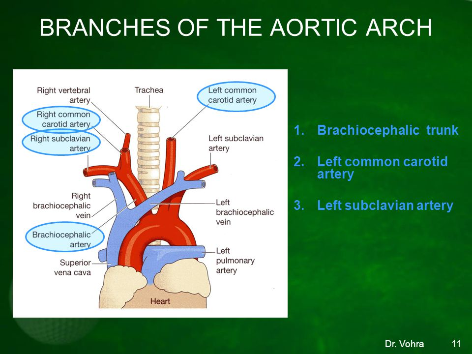 Dr. Vohra11 BRANCHES OF THE AORTIC ARCH 1.Brachiocephalic trunk 2.Left common carotid artery 3.Left subclavian artery