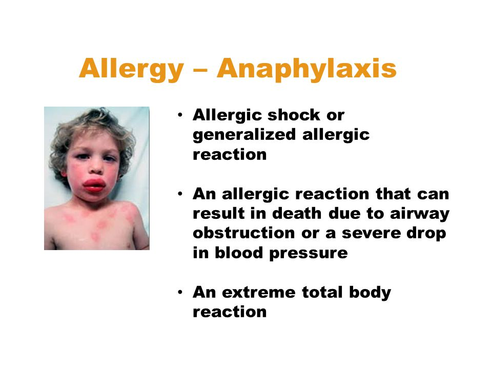 Allergic shock or generalized allergic reaction An allergic reaction that can result in death due to airway obstruction or a severe drop in blood pressure An extreme total body reaction Allergy – Anaphylaxis