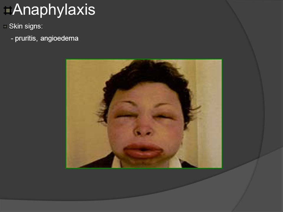 Anaphylaxis Skin signs: - pruritis, angioedema