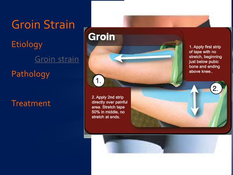 Etiology Groin strain Pathology Treatment Groin Strain