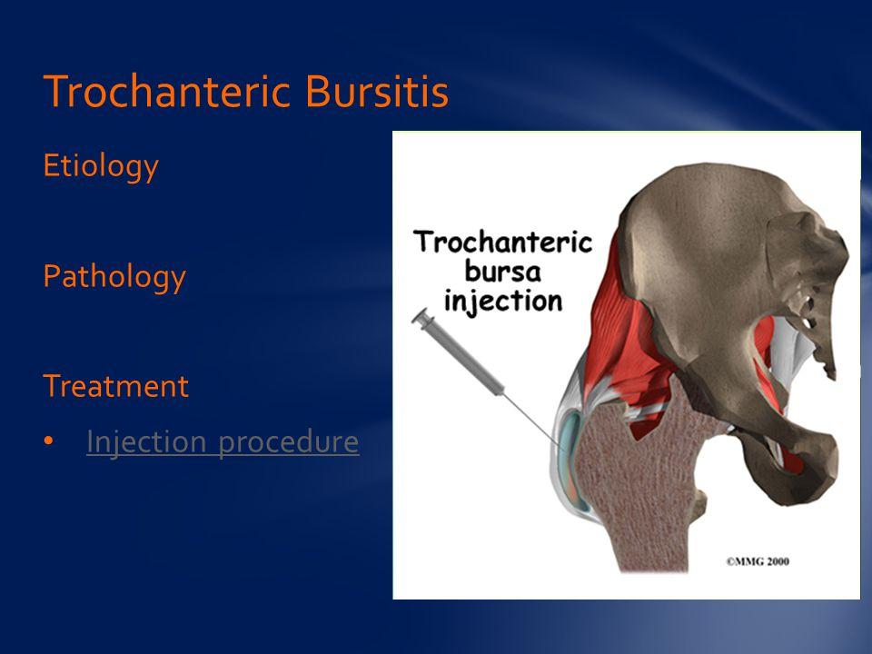 Etiology Pathology Treatment Injection procedure Trochanteric Bursitis