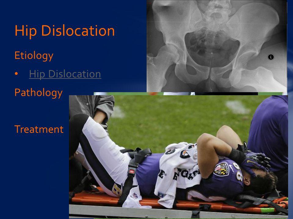 Etiology Hip Dislocation Pathology Treatment Hip Dislocation