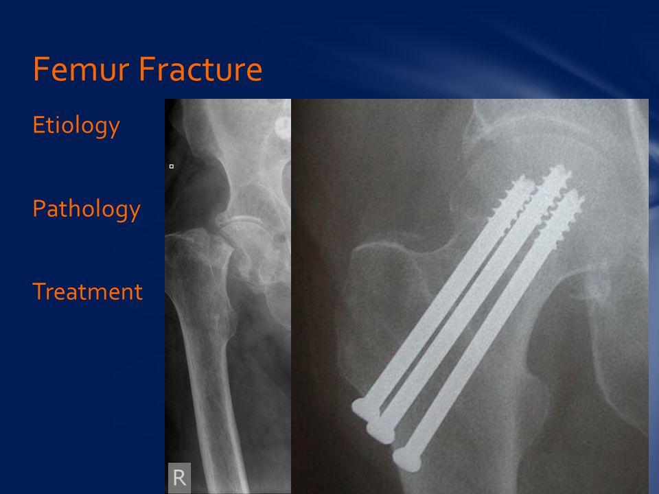 Etiology Pathology Treatment Femur Fracture
