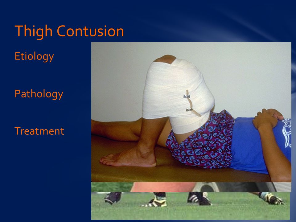 Etiology Pathology Treatment Thigh Contusion