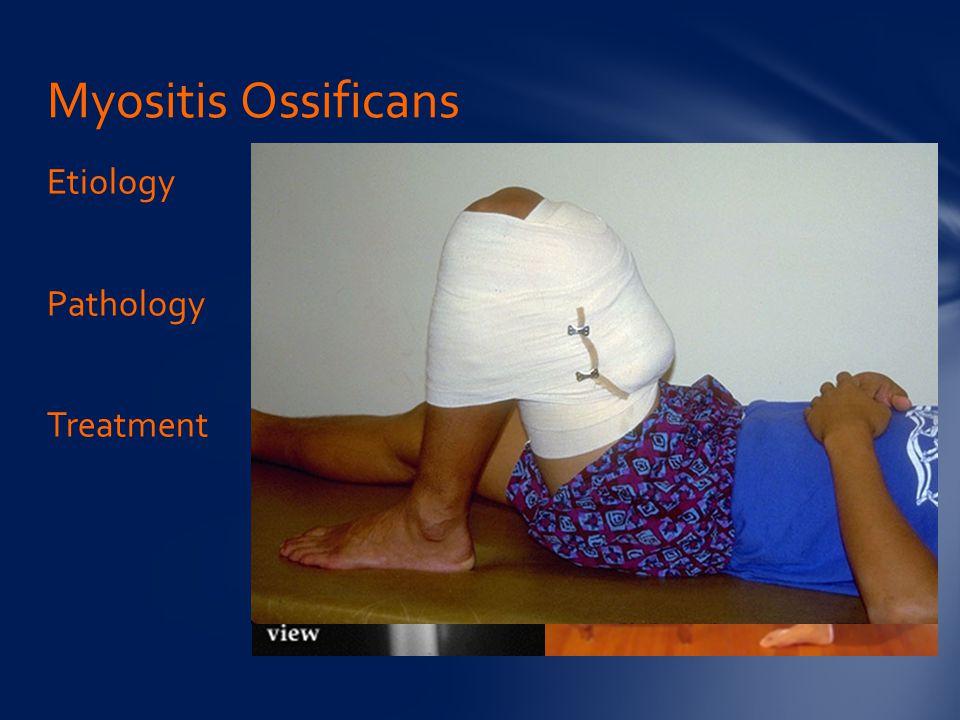 Etiology Pathology Treatment Myositis Ossificans