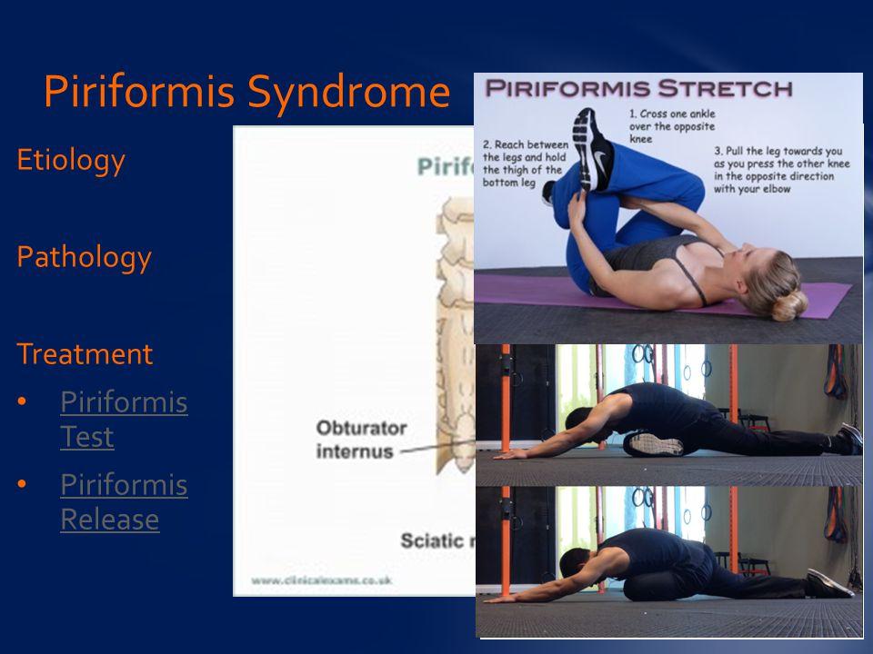 Etiology Pathology Treatment Piriformis Test Piriformis Test Piriformis Release Piriformis Release Piriformis Syndrome