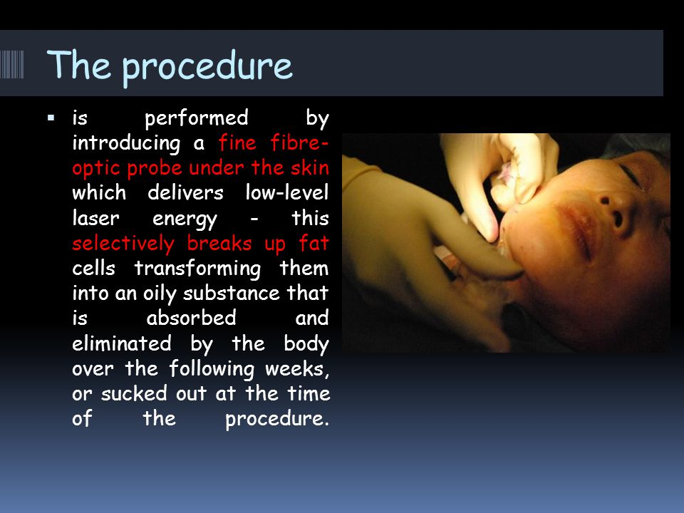 The procedure  is performed by introducing a fine fibre- optic probe under the skin which delivers low-level laser energy - this selectively breaks up fat cells transforming them into an oily substance that is absorbed and eliminated by the body over the following weeks, or sucked out at the time of the procedure.