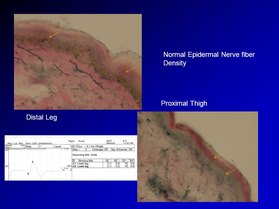Normal Epidermal Nerve fiber Density Distal Leg Proximal Thigh