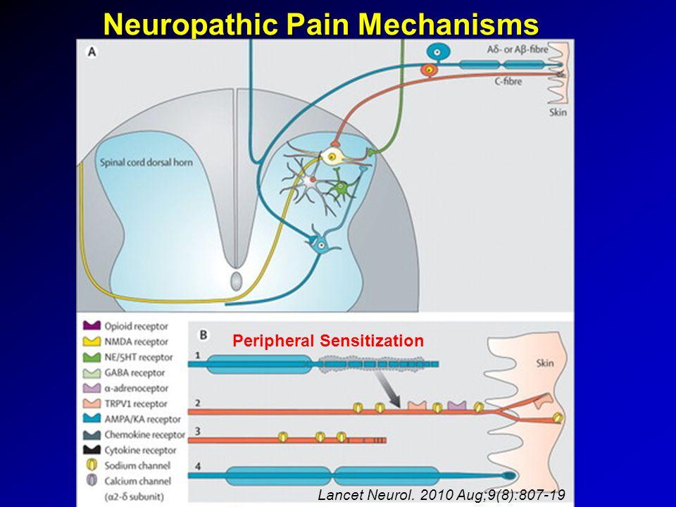 Neuropathic Pain Mechanisms Peripheral Sensitization Lancet Neurol. 2010 Aug;9(8):807-19