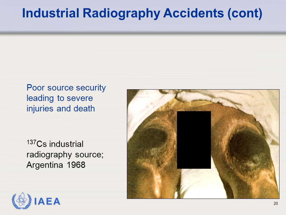 IAEA 137 Cs industrial radiography source; Argentina 1968 Industrial Radiography Accidents (cont) Poor source security leading to severe injuries and