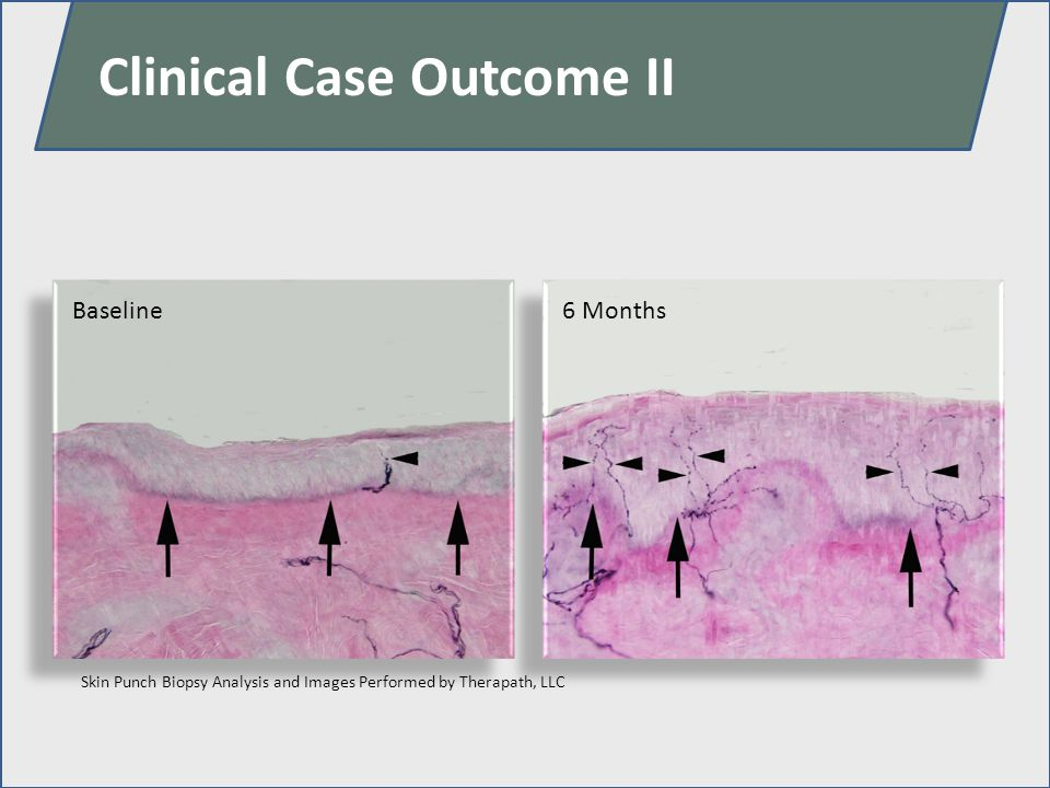 Baseline6 Months Clinical Case Outcome II Skin Punch Biopsy Analysis and Images Performed by Therapath, LLC