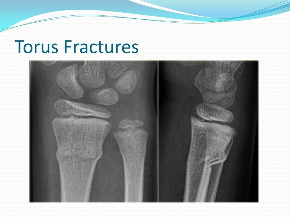 Torus Fractures