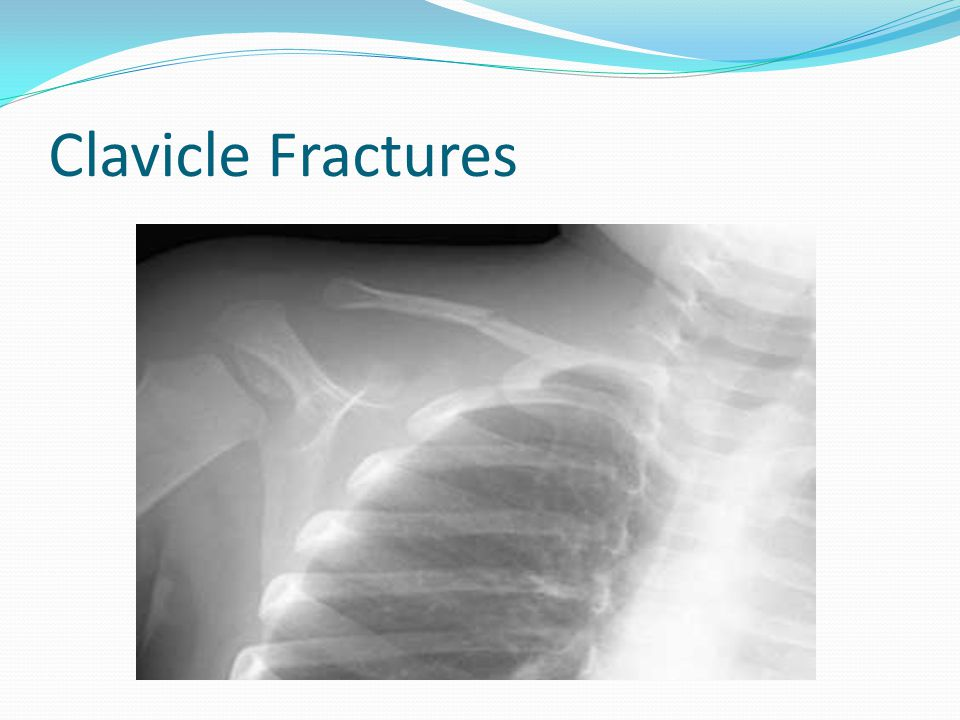 Clavicle Fractures