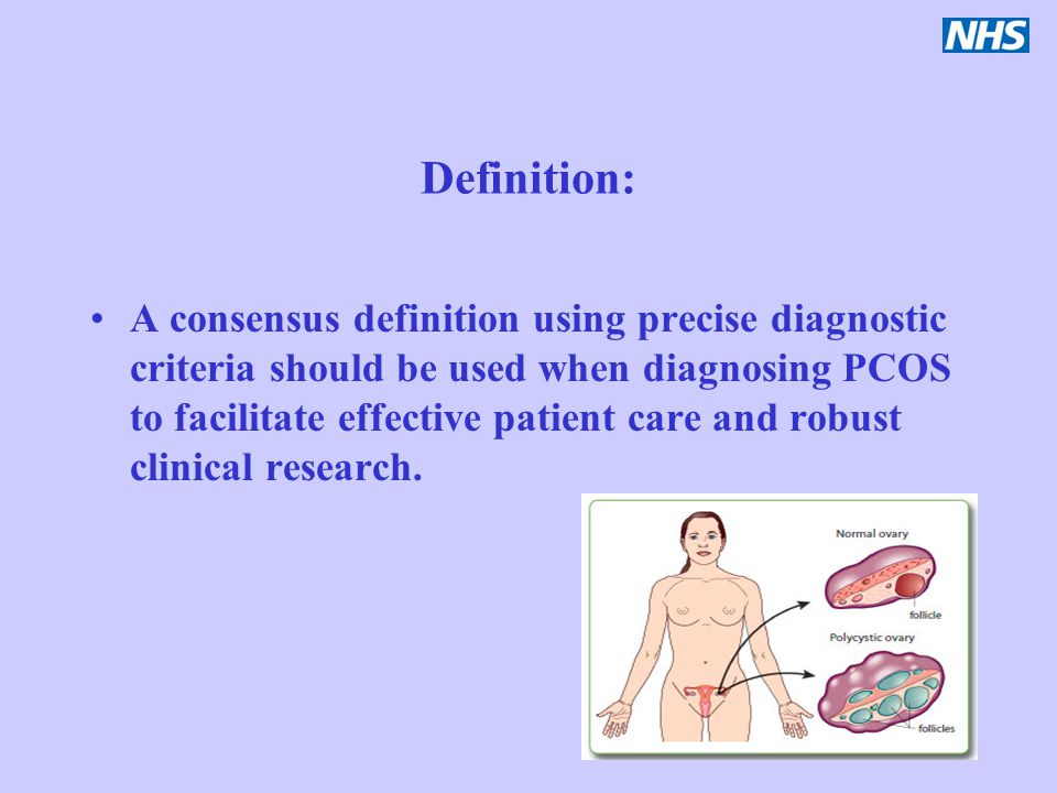 Definition: A consensus definition using precise diagnostic criteria should be used when diagnosing PCOS to facilitate effective patient care and robu