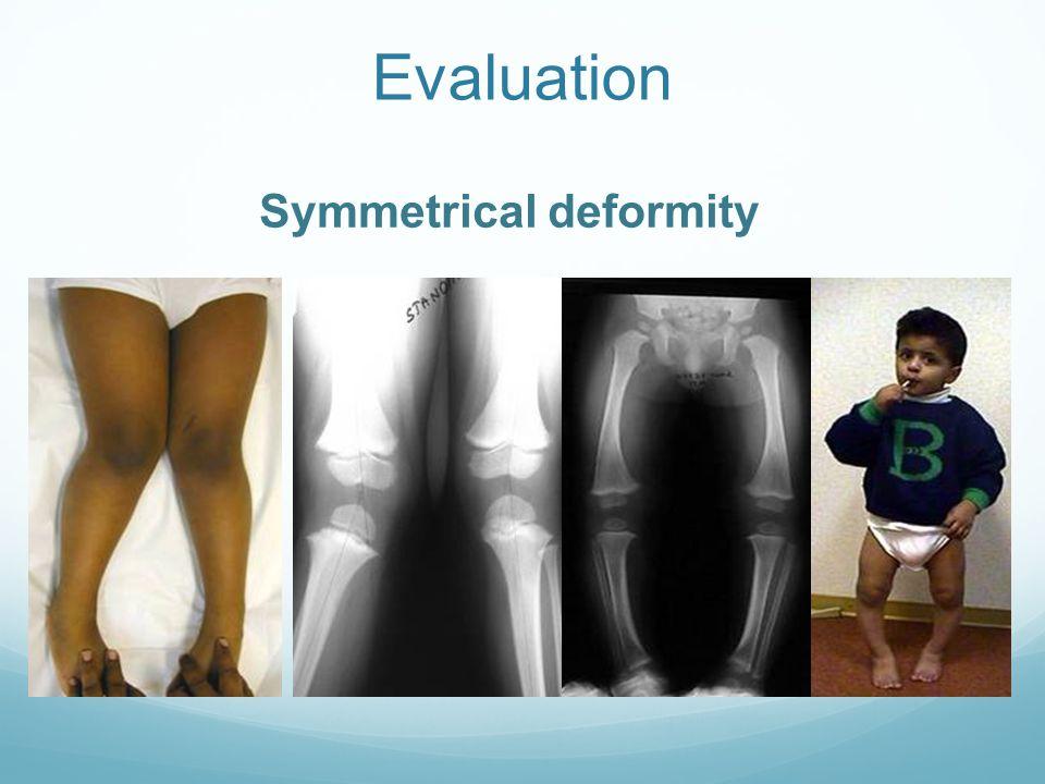 Rotational Profile 2. Assess femoral rotation arc Supine Flexed