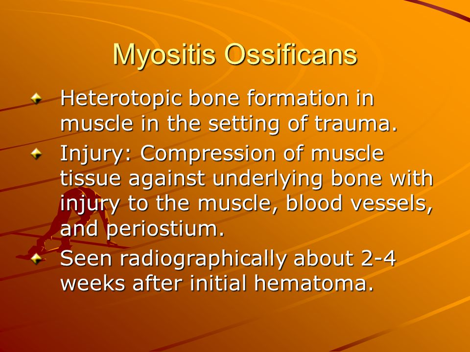Myositis Ossificans Heterotopic bone formation in muscle in the setting of trauma.