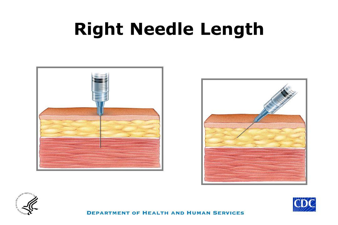 Right Needle Length