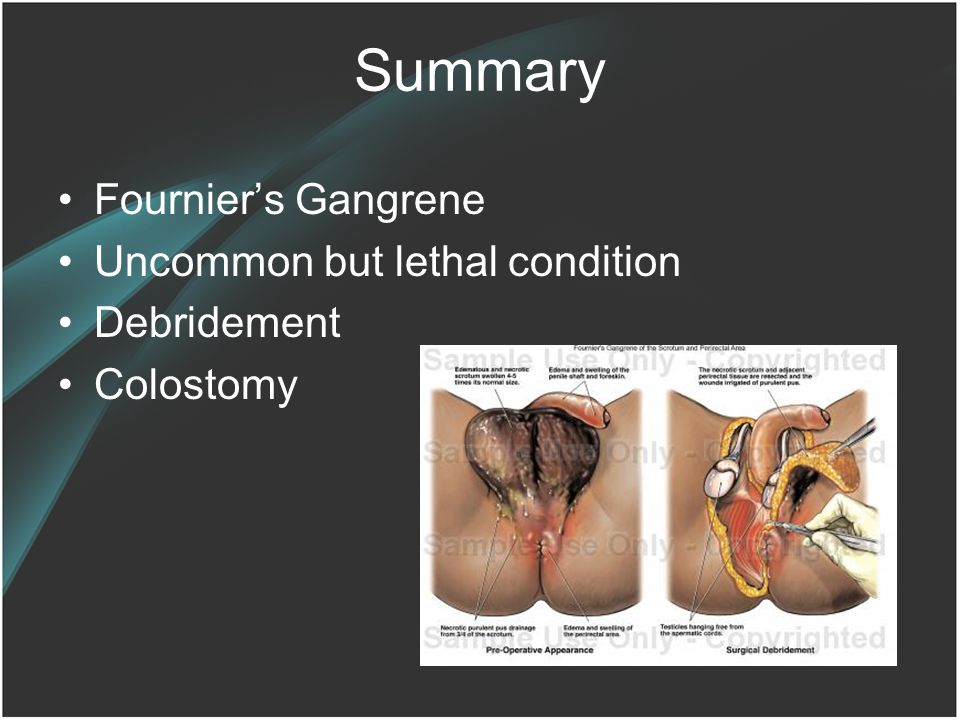 Summary Fournier's Gangrene Uncommon but lethal condition Debridement Colostomy